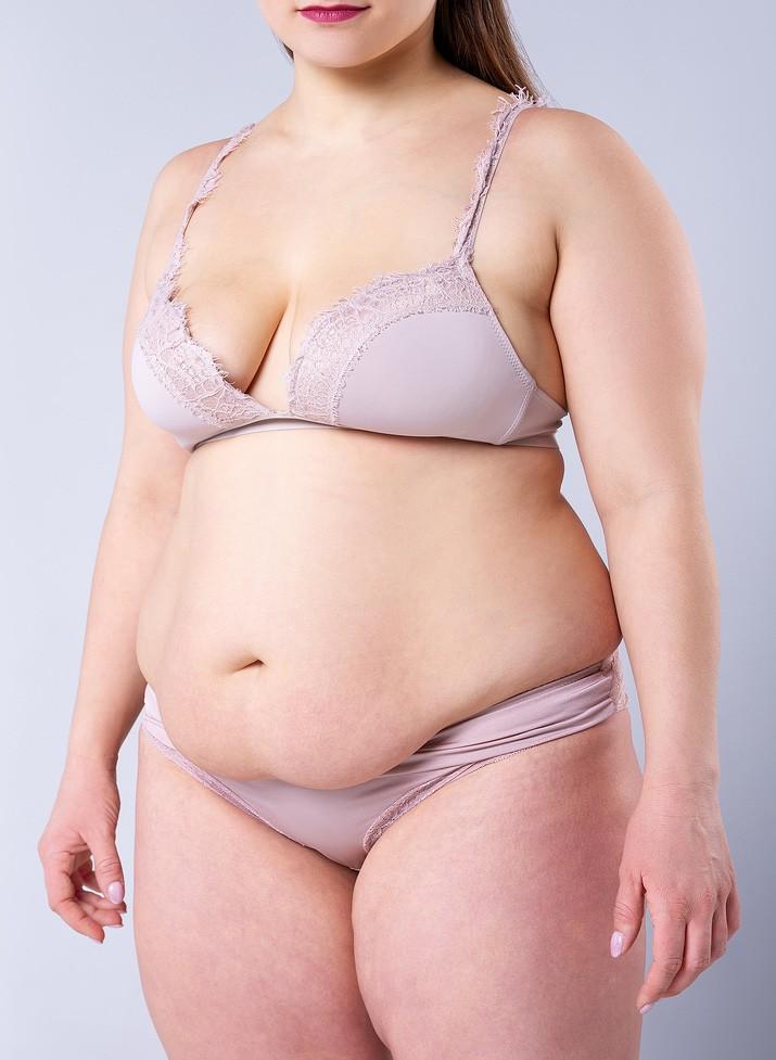 שאיבת שומן